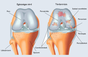 32764841 - arthrosis of the knee