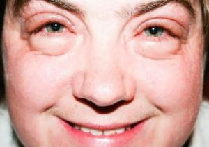 puffadt arc és szemkörnyék pajzsmirigy alulműködésnél